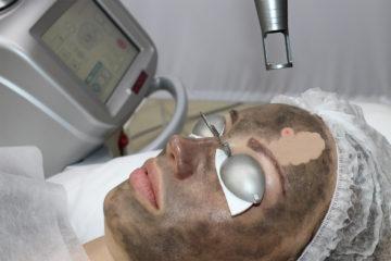 Карбоновый пилинг в клинике лазерной косметологии Л-Клиник