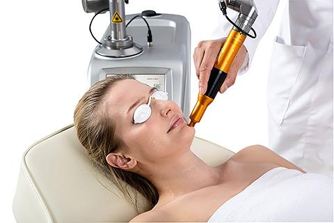Лечение пигментации в клинике лазерной косметологии L-Clinic
