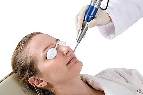 Лазерное омоложение в клинике лазерной косметологии Л-Клиник