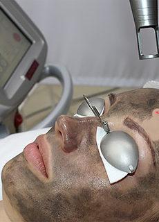 Карбоновый пилинг Spectra Peel в клинике лазерной косметологии Л-Клиник